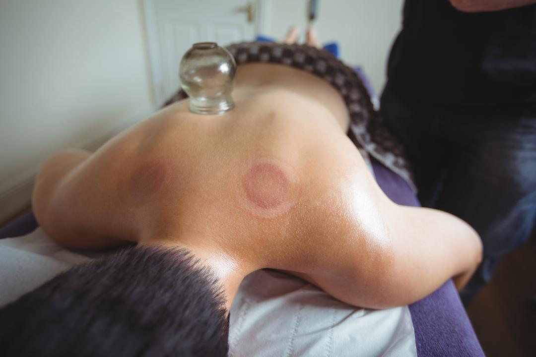 Man receiving cupping therapy in spa