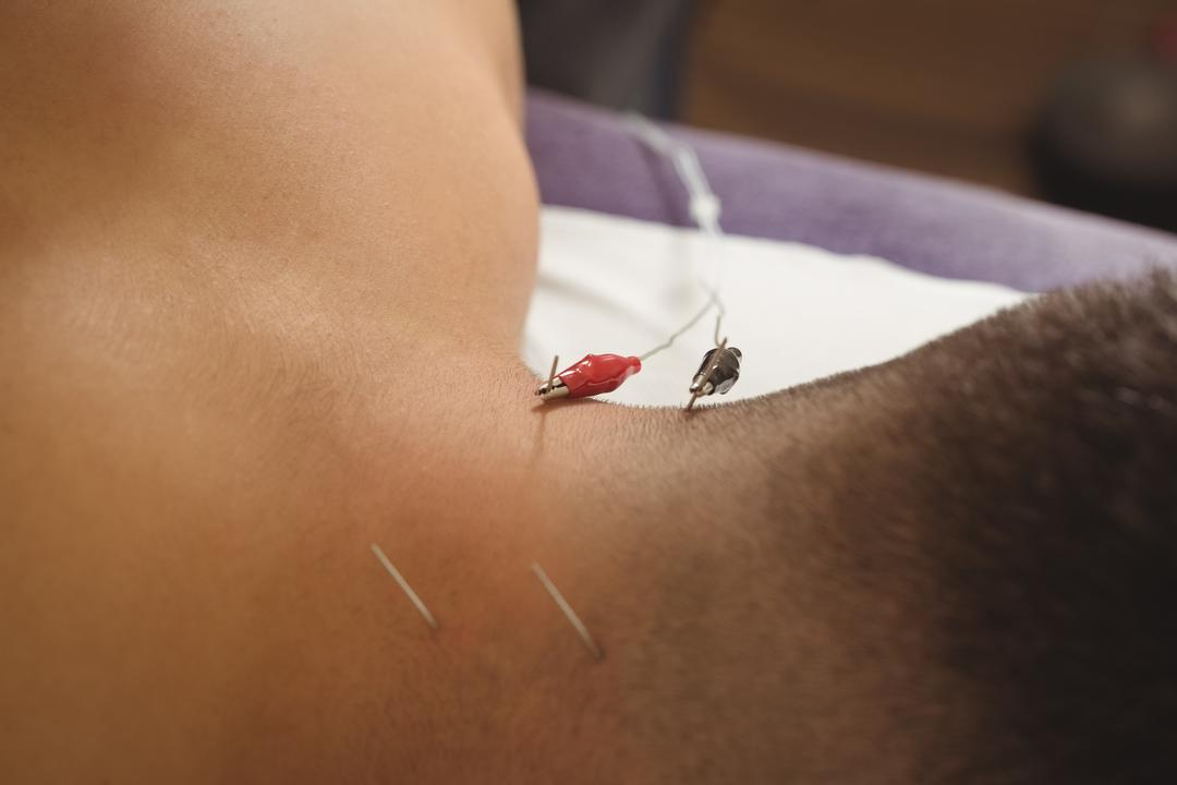 Patient getting electro dry needling on his back of neck