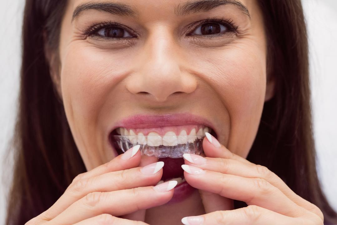 Female patient wearing braces in dental clinic Free Stock Images from PikWizard