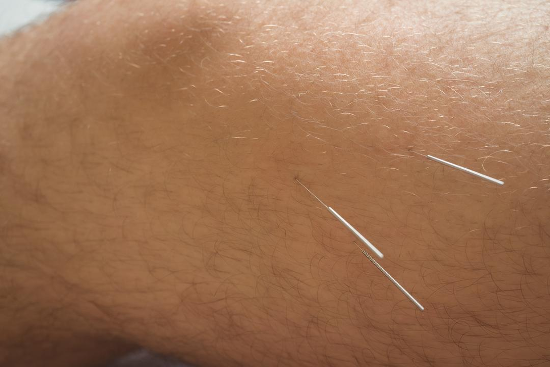 Close-up of a patient getting dry needling on knee