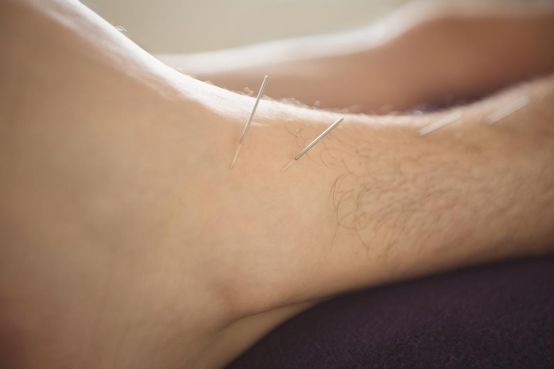 Close-up of a patient getting dry needling on leg Free Stock Images from PikWizard