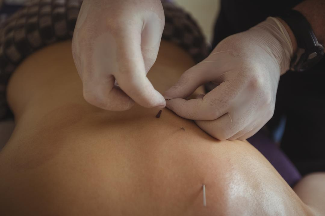 Therapist giving acupuncture to man in spa