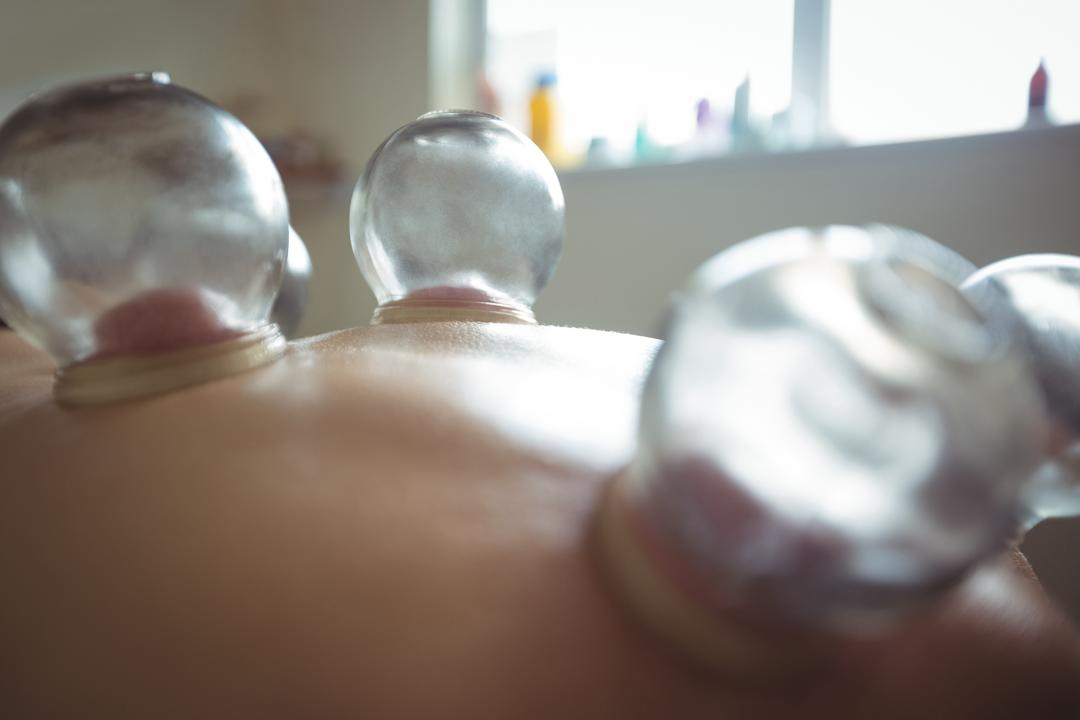 Mid section of man receiving cupping therapy