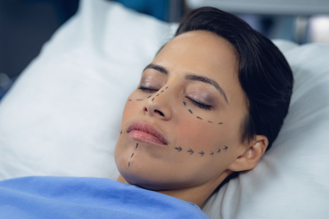 Close-up of facelift surgery markings on female patient face in hospital