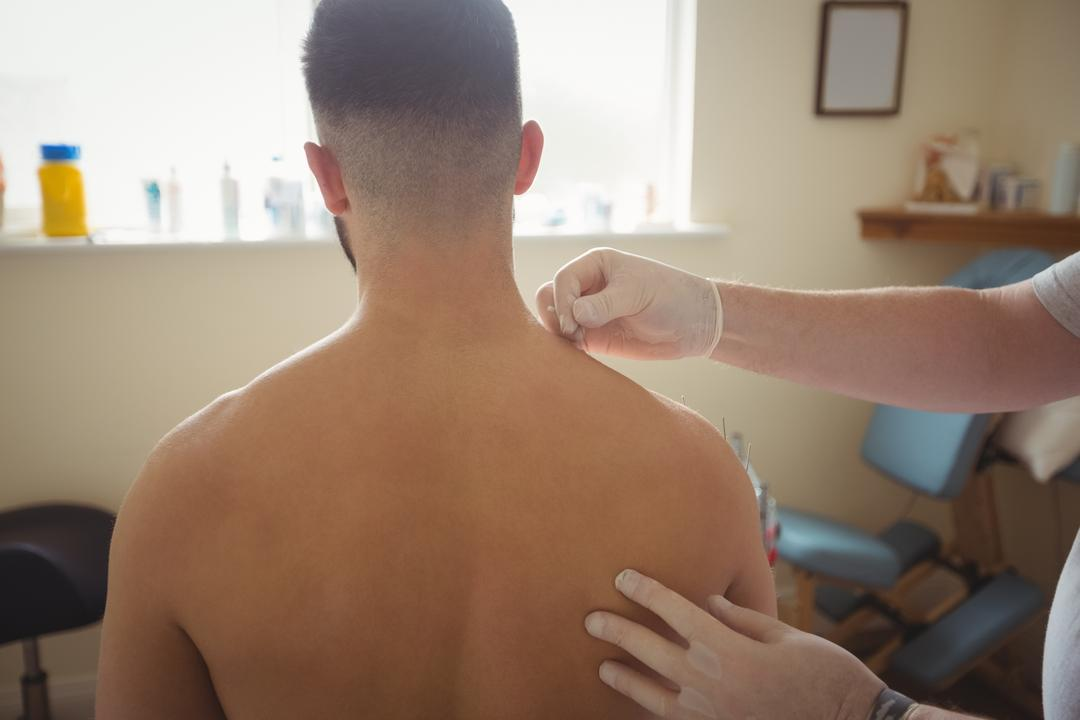 Physiotherapist performing dry needling on the shoulder of a patient in clinic