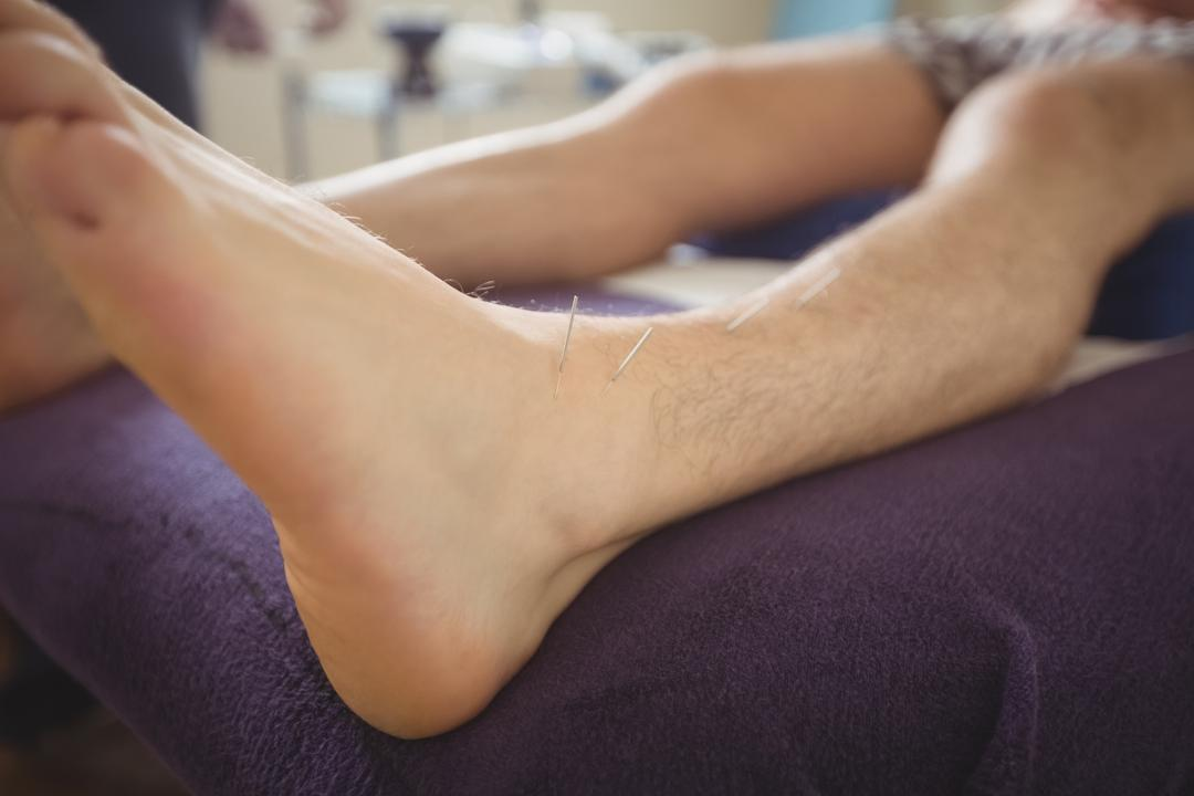 Patient getting dry needling on leg