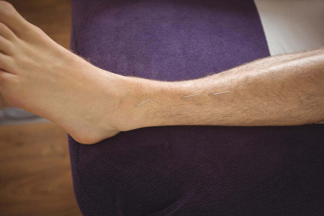 Close-up of a patient getting dry needling on leg
