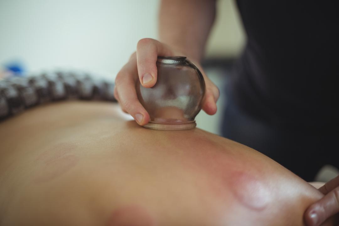 Mid section of therapist giving cupping therapy to man